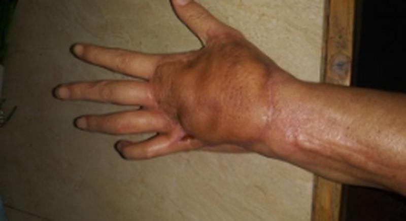 χέρι κόψιμο
