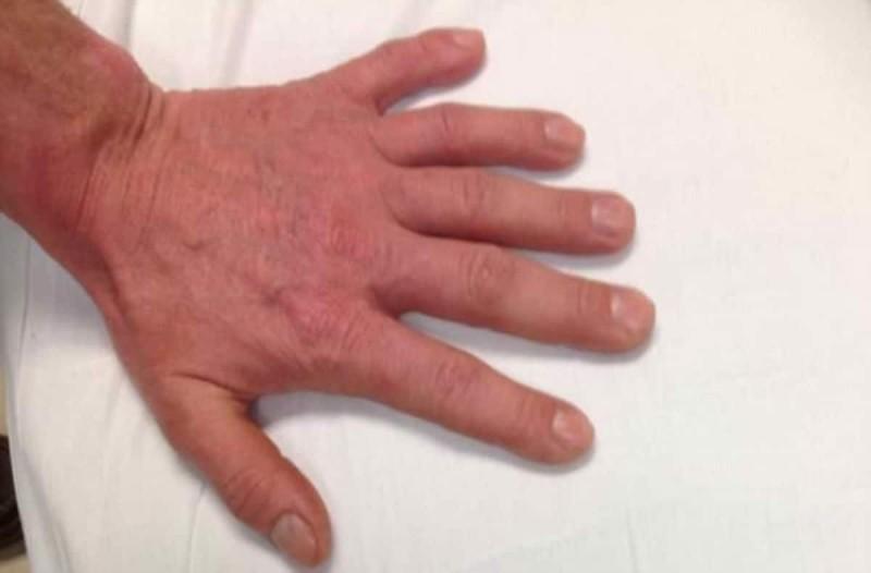 Με πρώτη ματιά φαίνεται ένα κανονικό χέρι! Αν παρατηρήσετε καλύτερα όμως...θα παγώσετε!