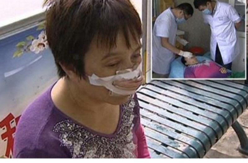 Όταν πήγε στο νοσοκομείο χωρίς μύτη οι γιατροί κατατρόμαξαν...Όταν τους είπε πώς το έπαθε, πάγωσαν!