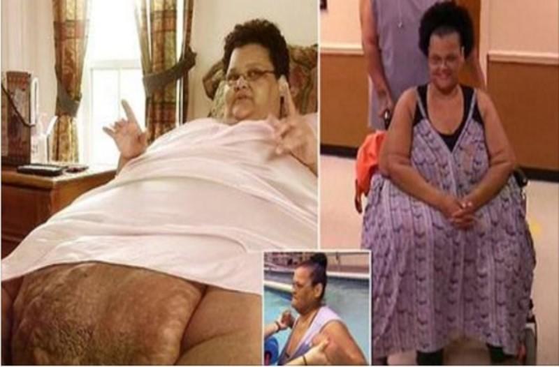 Ζύγισε 340 κιλά και δεν περπατούσε για πολλά χρόνια - Όταν δείτε πόσο αδυνάτισε θα