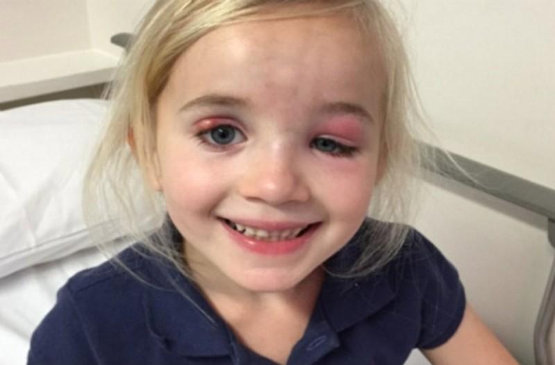 Οι γιατροί πίστευαν ότι είναι απλά μια μόλυνση στο μάτι - Μετά από μέρες ανακάλυψε τι έφταιγε