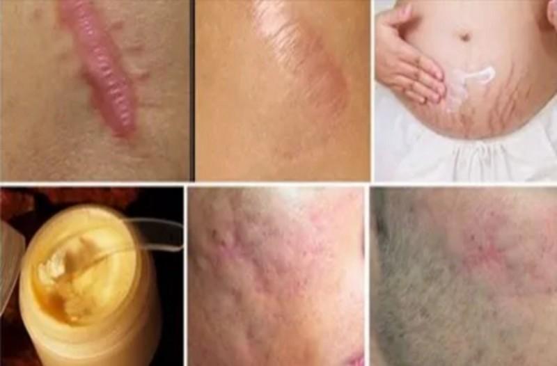 Εξαφανίστε τις ουλές του σώματος με μέλι και άλλα 3 υλικά - Αποτελέσματα ορατά σε λιγότερο από ένα μήνα