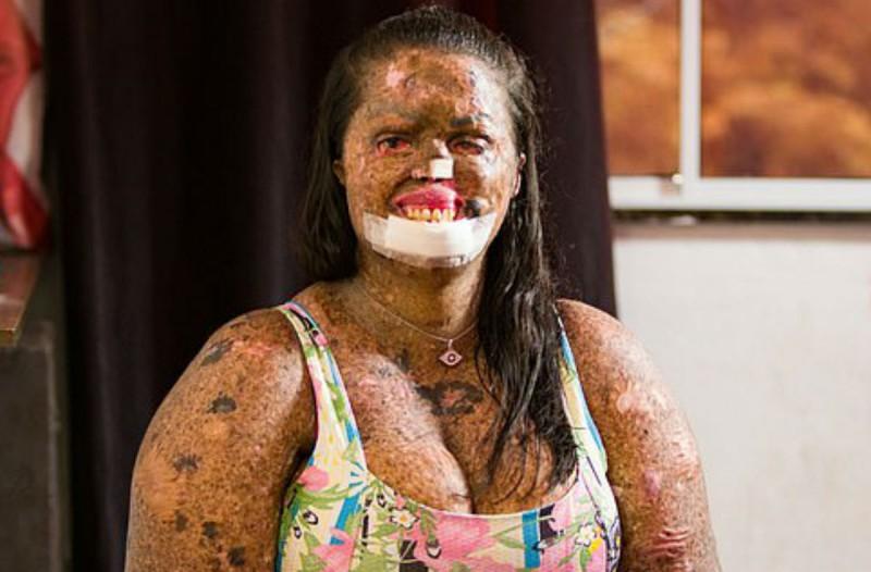 29χρονη «μεταμορφώνεται» σε... ζόμπι - Η σπάνια ασθένεια που προκαλεί τρόμο (Video)