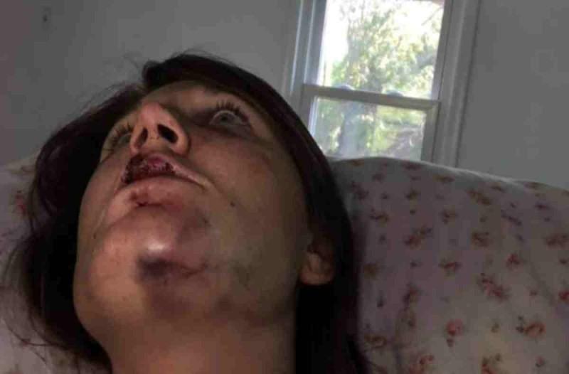 Ξυλοκοπήθηκε από τον άντρα της σοβαρά - Σήμερα που γλίτωσε τον θάνατο στέλνει ένα ανατριχιαστικό μήνυμα