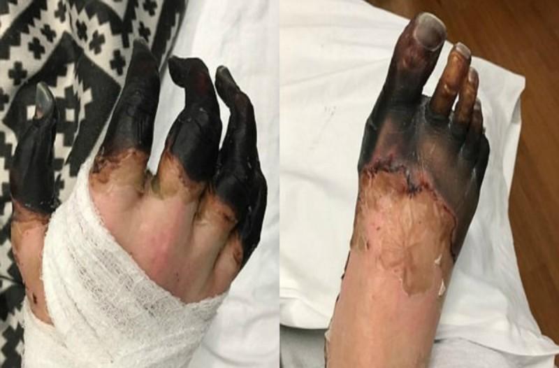 Είχε αφόρητους πόνους και μέσα σε λίγη ώρα τα χέρια και τα πόδια του μαύρισαν - Δεν φαντάζεστε από τι το έπαθε