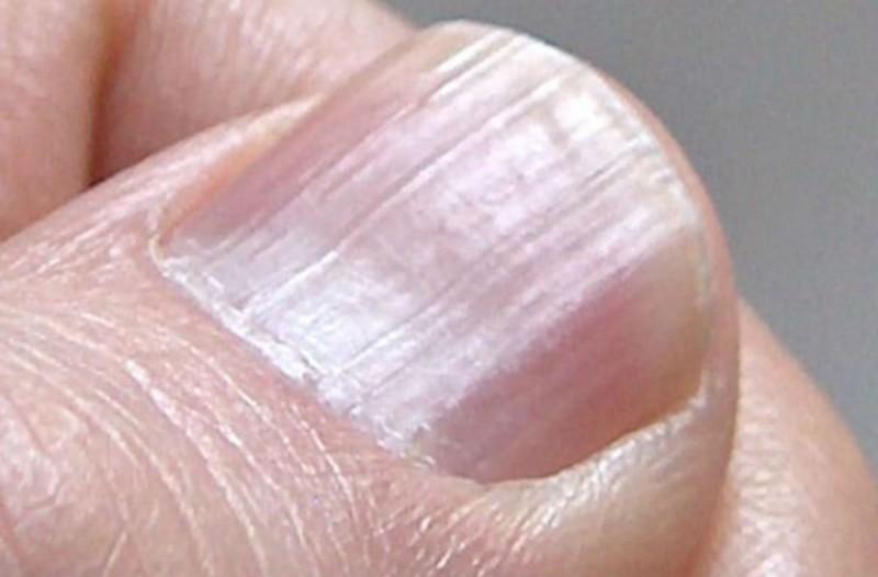 Παρατηρήστε τα νύχια σας αμέσως - Μπορεί να κινδυνεύετε από σοβαρές νόσους!
