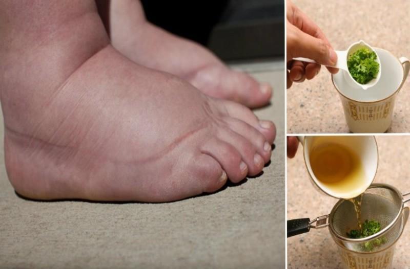 Τα πόδια της μελάνιαζαν και πρήζονταν κάθε βράδυ - Τότε δοκίμασε συνταγή με μέλι και ένα φυτικό συστατικό...