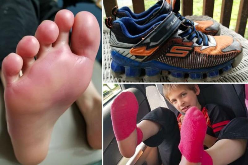 παπούτσια εγκαύματα
