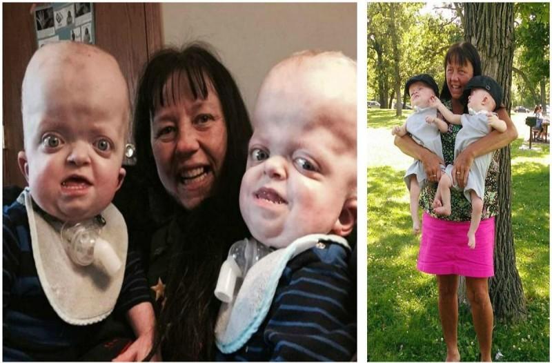 58χρονη γιαγιά υιοθέτησε αυτά τα δίδυμα με σπάνια πάθηση - Θα σας συγκινήσει η συνέχεια