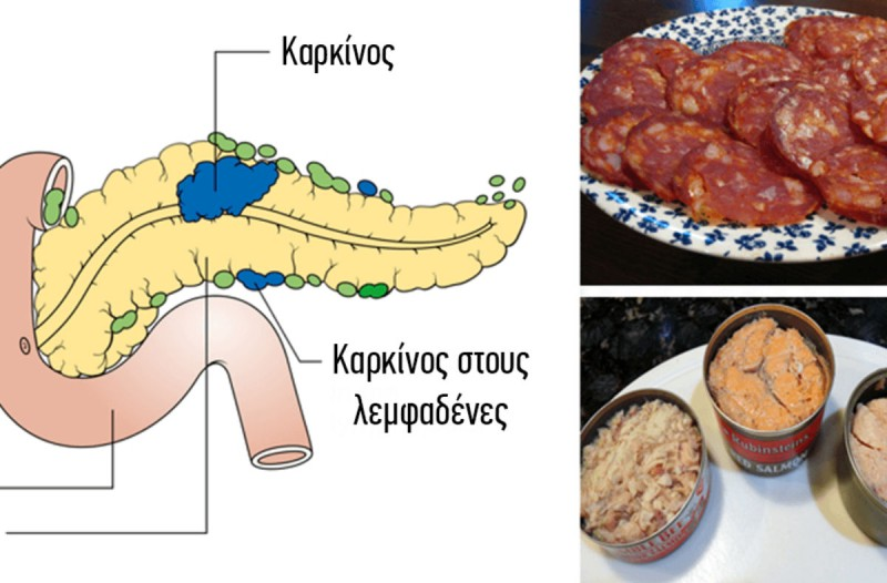 Κίνδυνος: 10+1 τροφές που προκαλούν καρκίνο - Σταματήστε να τις τρώτε