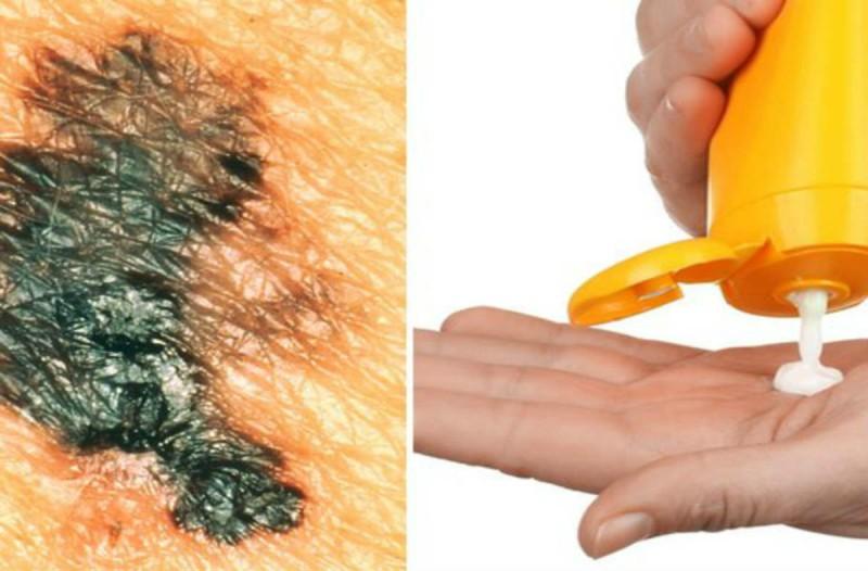 5+1 επικίνδυνα συστατικά των αντηλιακών που πρέπει να προσέξετε
