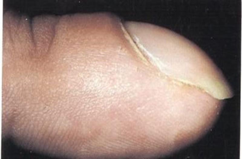 Αν τα νύχια σας είναι φουσκωτά τότε μπορεί να...Δώστε προσοχή
