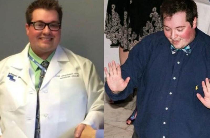 30χρονος υπέρβαρος γιατρός έχασε 57 κιλά κάνοντας διαλειμματική νηστεία