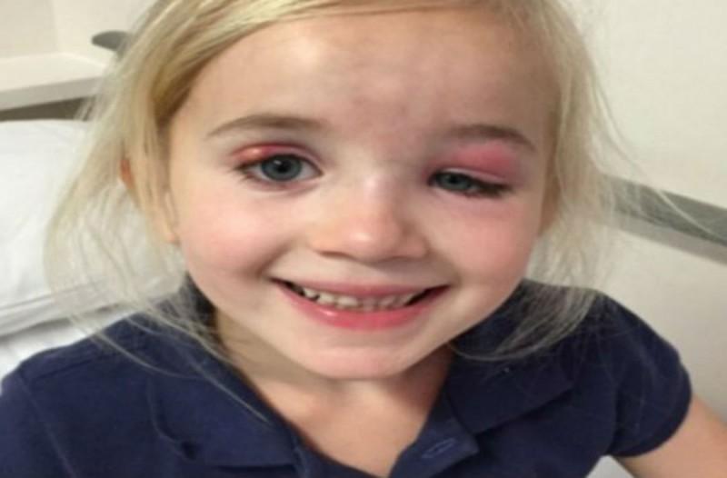 Οι γιατροί είπαν σε 6χρονη ότι είχε μια απλή μόλυνση στο μάτι - Λίγες μέρες μετά η μητέρα της συνειδητοποιεί την ανατριχιαστική αλήθεια (Video)
