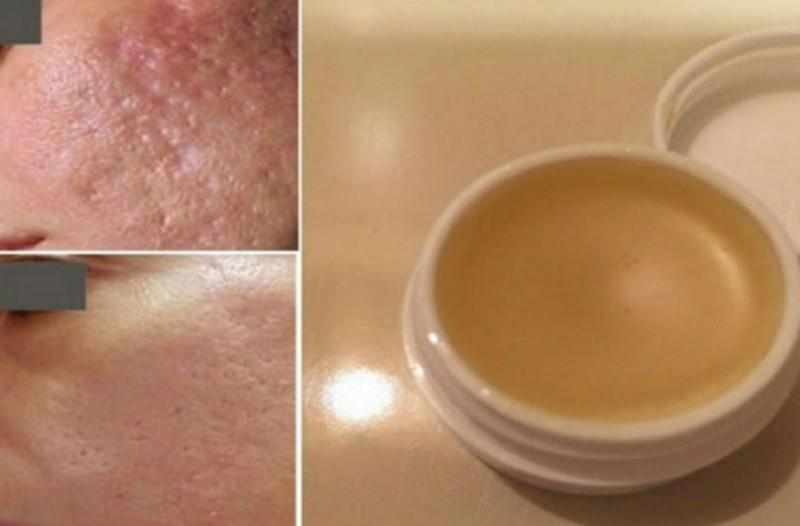 Εξαφανίστε τις ουλές από το δέρμα σας με αυτή την μοναδική σπιτική αλοιφή