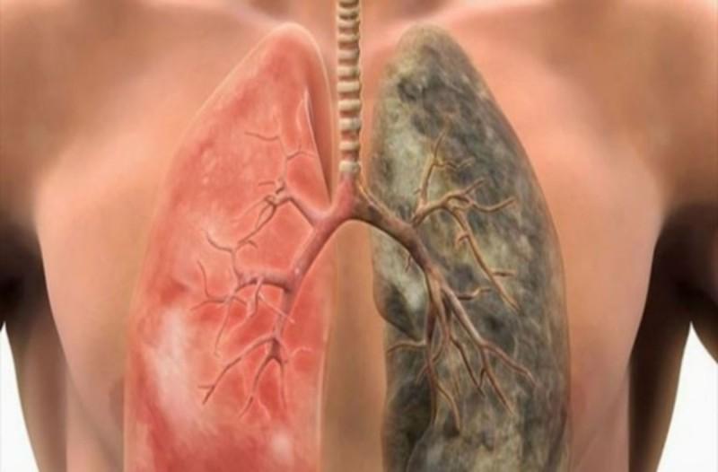 5+1 τροφές που καθαρίζουν τα πνευμόνια από τη νικοτίνη