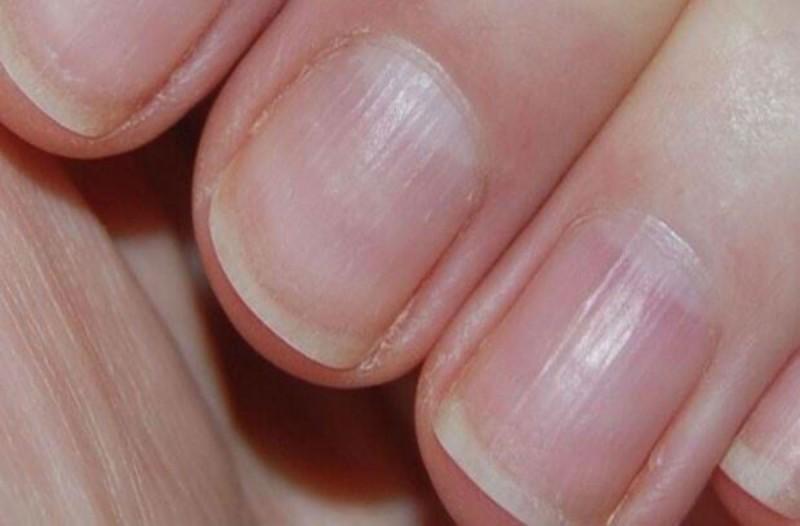 Αν έχετε αυτές τις μικρές ραβδώσεις στα νύχια σας τότε κινδυνεύετε από...