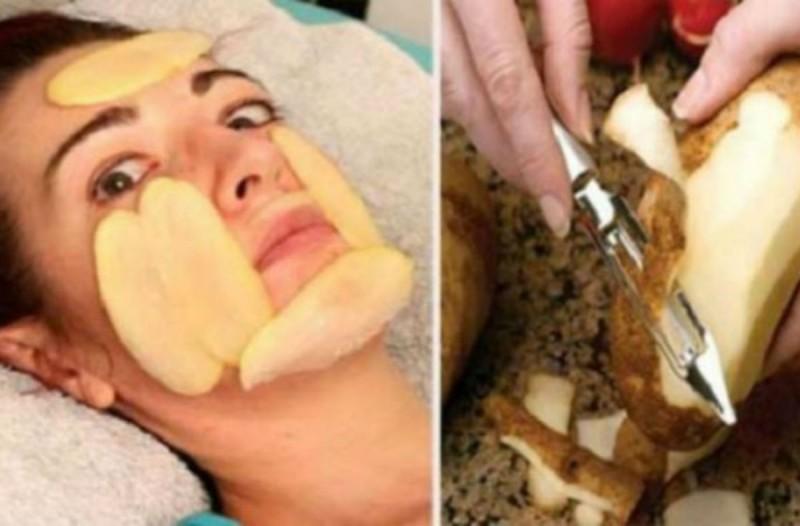 Έκοψε φέτες πατάτας και τις έβαλε στο πρόσωπό της - Τα αποτελέσματα είναι θεαματικά...