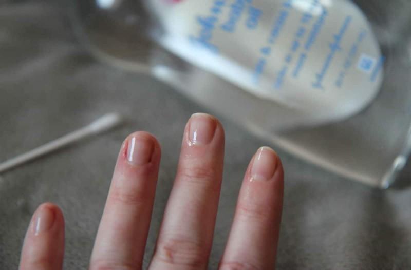 Έτριψε τα νύχια της με baby oil - Λίγα λεπτά μετά πήρε ένα ψαλιδάκι και...