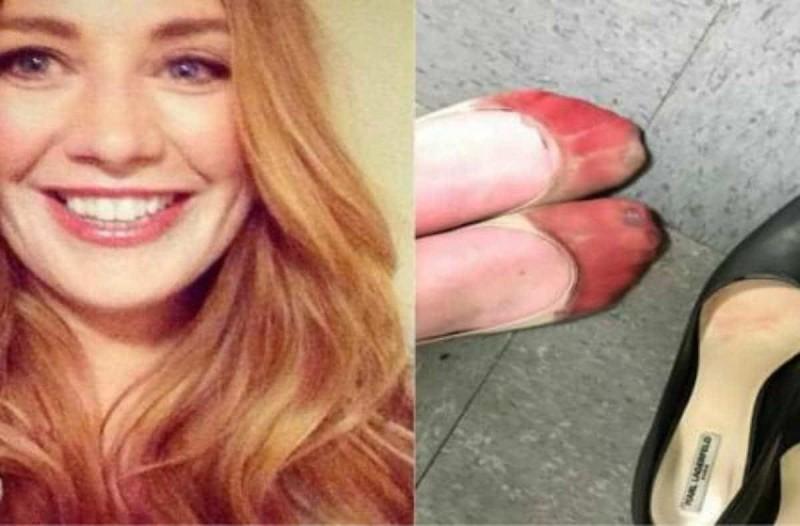 25χρονη σερβιτόρα έβγαλε φωτογραφία τα ματωμένα της πόδια και γκρέμισε το διαδίκτυο
