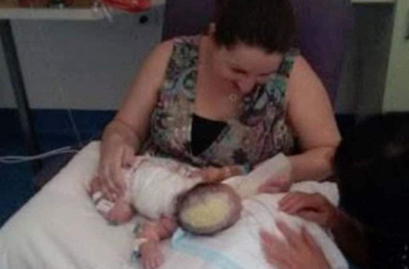 Στη γέννα παρατήρησαν κάτι πολύ παράξενο στο κεφάλι του μωρού - Μόλις κατάλαβαν τι ήταν, τους κόπηκε η ανάσα!