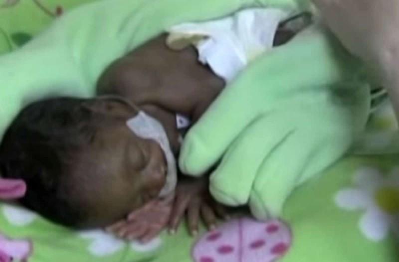 Άφησε ένα χειρουργικό γάντι στην θερμοκοιτίδα του μωρού της