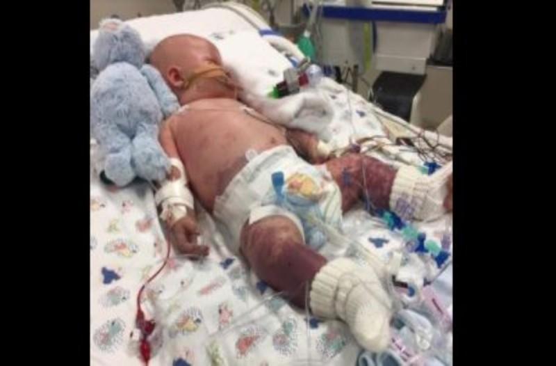 Οι γιατροί έπαθαν σοκ όταν είδαν τα μαύρα χέρια του μωρού - Η διάγνωση τους έκανε να ανατριχιάσουν