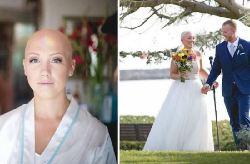 Νύφη έχασε τα μαλλιά της εξαιτίας ασθένειας - Ο λόγος που αρνήθηκε να βάλει περούκα στον γάμο της; Συγκλονιστικός!