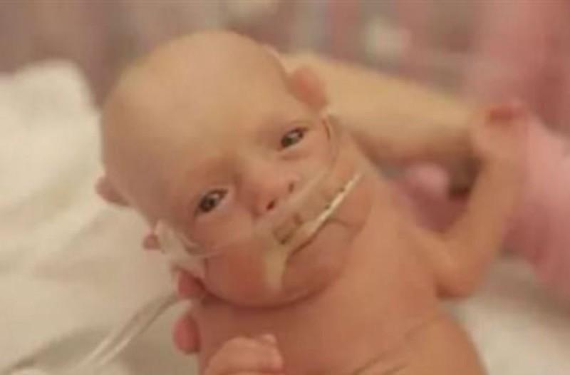 Μωρό γεννήθηκε στους 5,5 μήνες - Δείτε πώς είναι μετά από ένα χρόνο... (Video)