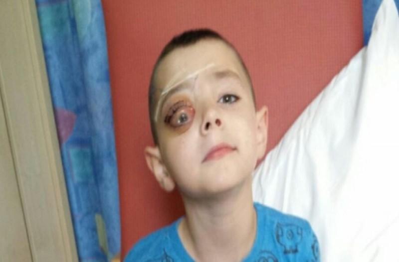 7χρονος μεταφέρεται στο νοσοκομείο με φριχτούς πόνους στο μάτι. Μόλις τον εξέτασαν οι γιατροί τους σηκώθηκε η τρίχα!