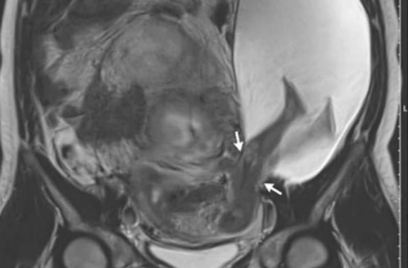 33χρονη έγκυος πήγε για υπέρηχο - Ο γιατρός σοκαρίστηκε με αυτό που είδε (photo)