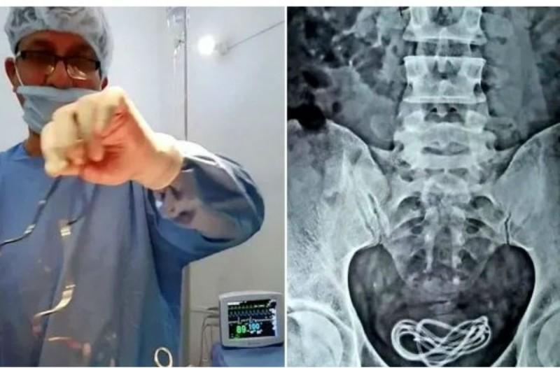 30χρονος πήγε στο νοσοκομείο με αφόρητους πόνους στην κοιλιά - Άφωνος ο γιατρός μόλις είδε την ακτινογραφία (photo)