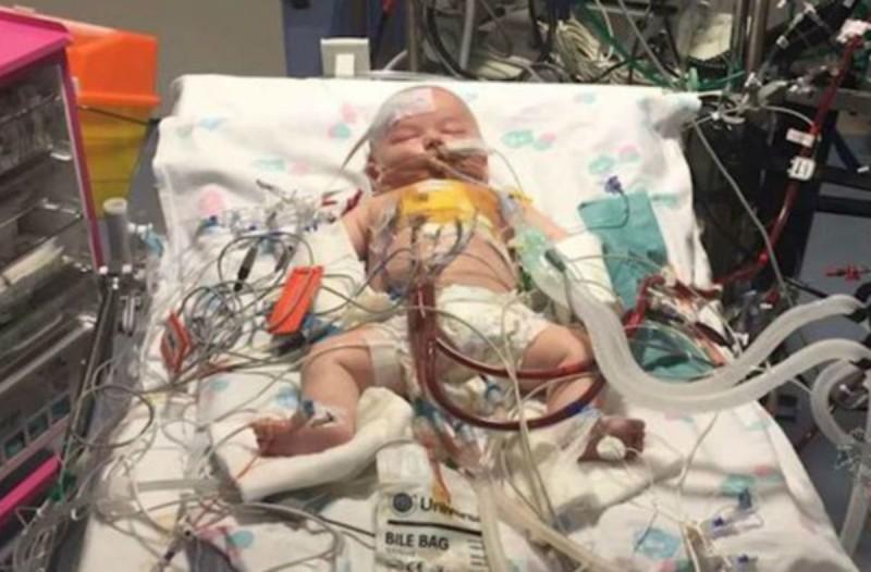Η καρδιά ενός μωρού σταμάτησε για 15 ώρες - 9 μήνες μετά... (Video)