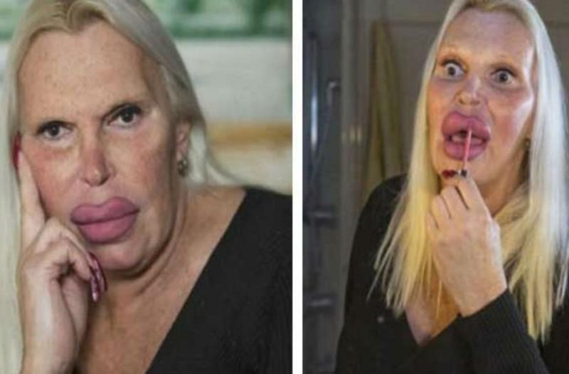 56χρονη έχει ξοδέψει 76.000 δολάρια για να γίνει έτσι - Πρέπει να δείτε πως ήταν πριν τις πλαστικές επεμβάσεις (photo)