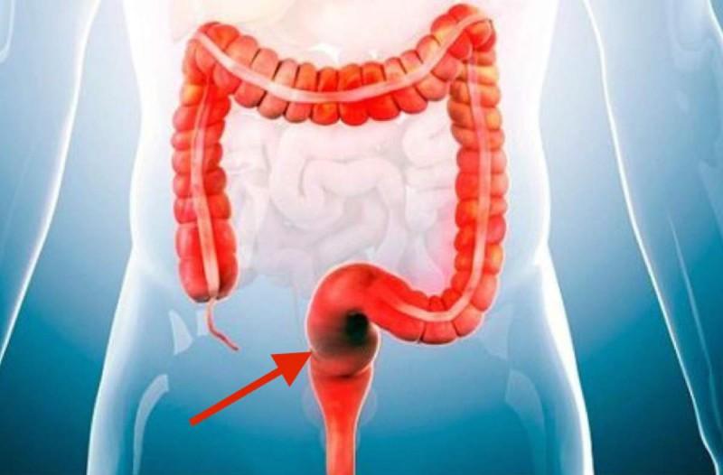 Σοκ: Αυτό το συστατικό προκαλεί καρκίνο και δυστυχώς υπάρχει σε όλες τις τροφές που τρώμε
