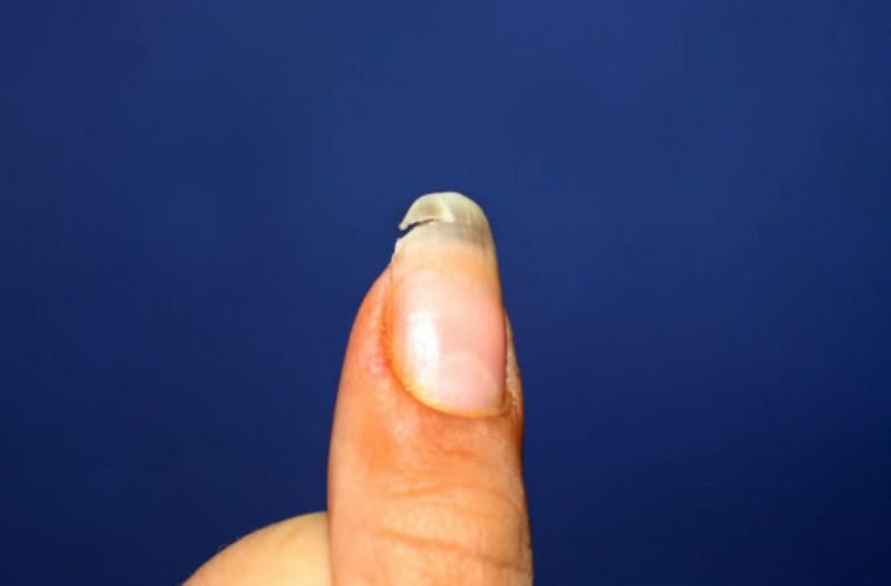 Έχετε παρατηρήσει να σπάνε τα νύχια σας; Αυτό μπορεί να σημαίνει...