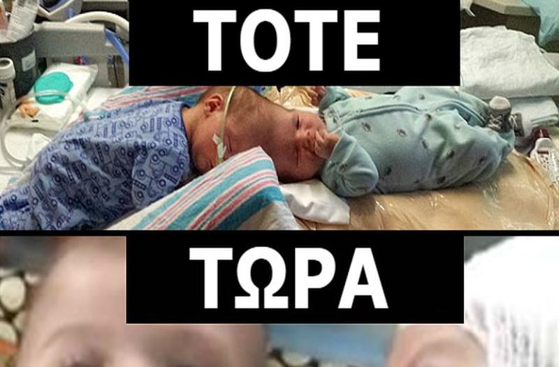 Θυμάστε τα σιαμαία που ήταν ενωμένα στο κεφάλι και οι γιατροί τα χειρουργούσαν για 20 ώρες; Δείτε τα να αγκαλιάζονται για 1η φορά!
