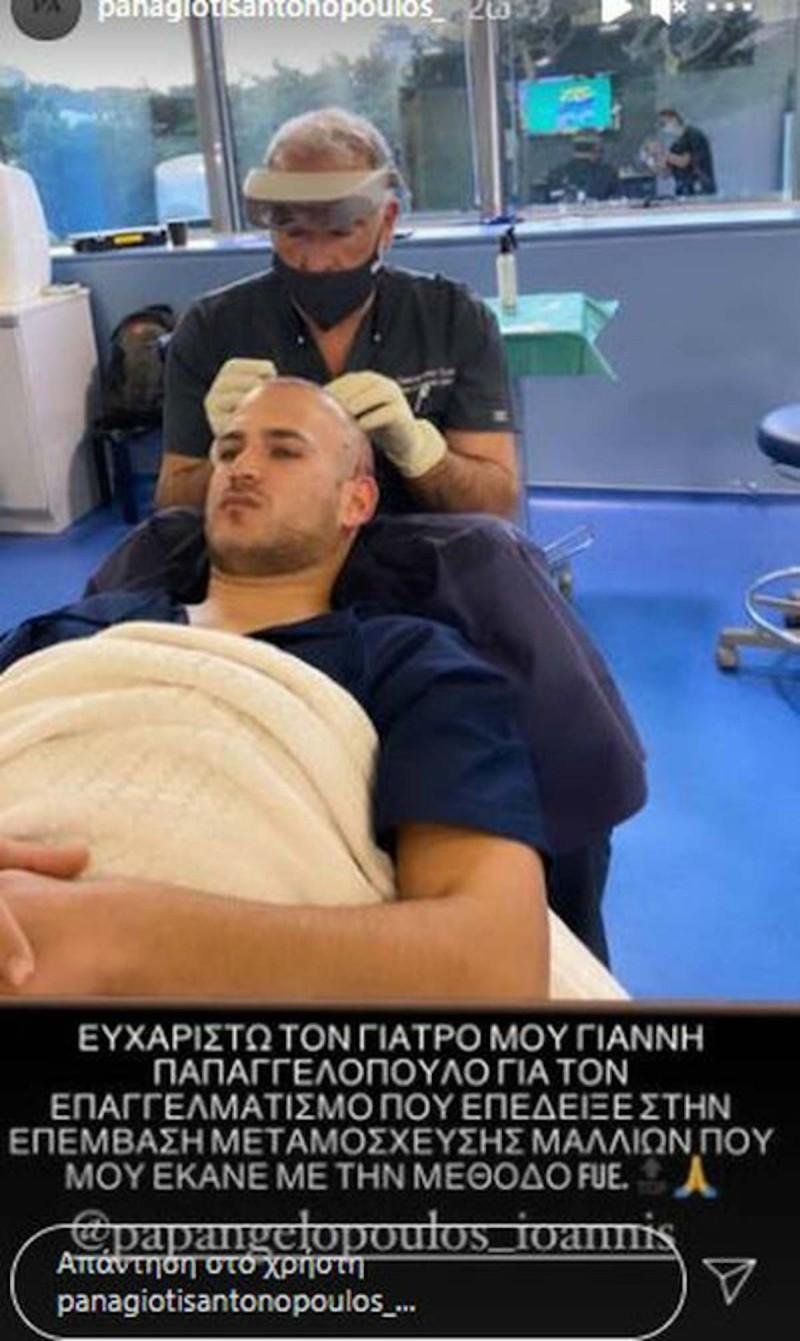 GNTM παίκτης μεταμόσχευση μαλλιών