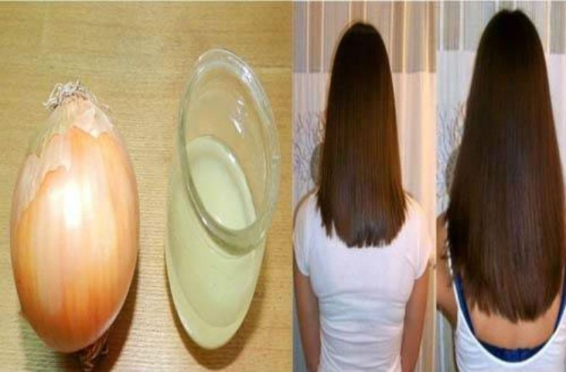 Τα οφέλη από χυμό κρεμμυδιού στην υγεία μας και στα μαλλιά μας