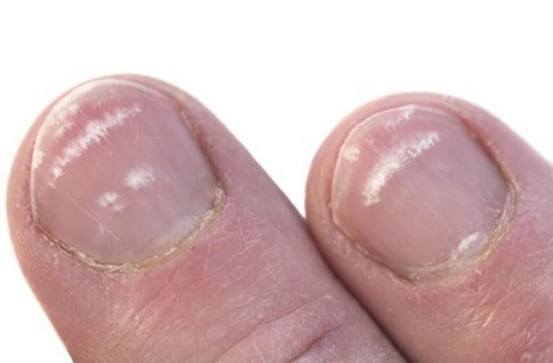 Τελικά, τι είναι αυτά τα λευκά σημάδια στα νύχια μας; Μεγάλη προσοχή!