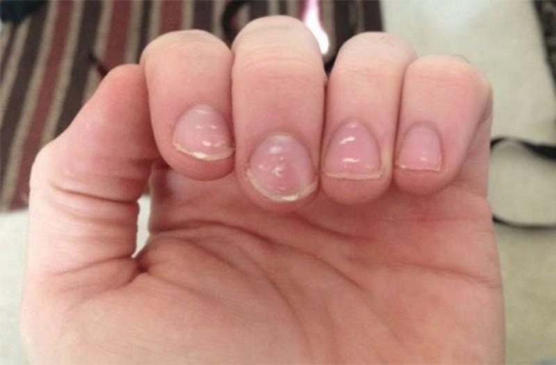 Λευκονυχία μάθετε γιατί έχετε λευκά σημάδια στα νύχια σας