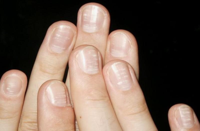 Μάθετε γιατί έχετε λευκά σημάδια στα νύχια σας