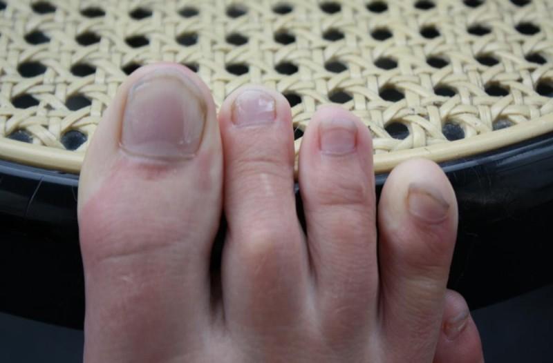 Μήπως τα νύχια των ποδιών σας είναι κάπως έτσι; Δείτε τι φταίει και πώς να το αντιμετωπίσετε