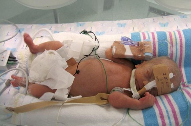 Νεογέννητο μωράκι στην θερμοκοιτίδα