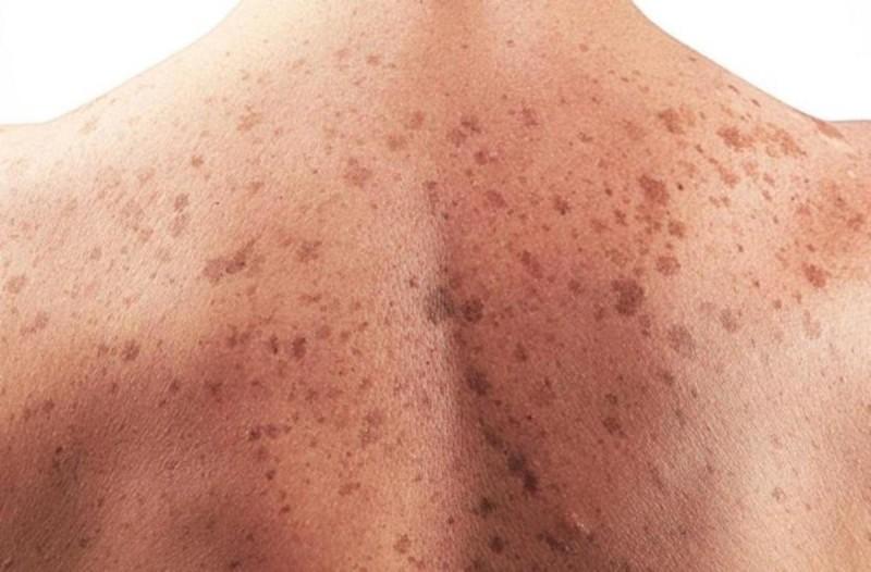 Καρκίνος του δέρματος και συμπτώματα
