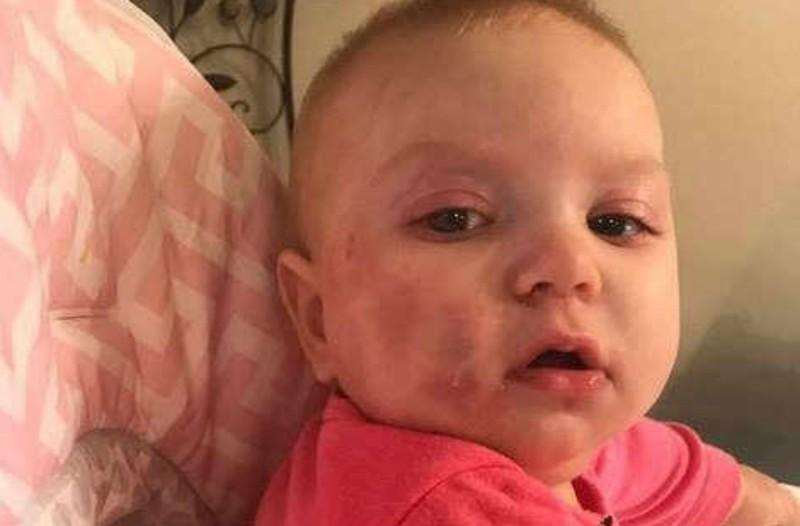 Δαγκωματιές σε μωρό