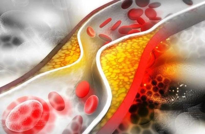 Με ποιο φρούτο σύμφωνα με ερευνητές μπορείτε να ρίξετε τη χοληστερίνη 40% σε ένα μήνα