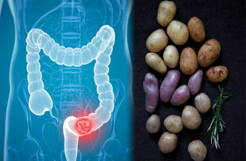 Καρκίνος του παχέος εντέρου: Πώς συνδέεται με τις πατάτες που τρώτε