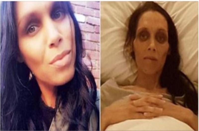 """Σπαρακτικές φωτογραφίες δείχνουν πως ο καρκίνος εξασθένησε μια νεαρή μητέρα - Το """"πριν"""" και το """"μετά"""", θα σας σοκάρουν"""