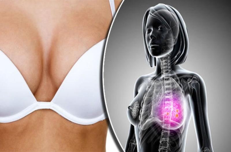 Καρκίνος του Μαστού: 9 προειδοποιητικά σημάδια - Σίγουρα τα ξέρετε όλα;